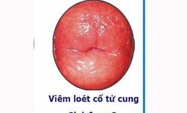 Viêm lộ tuyến độ 3 là giai đoạn nặng của bệnh
