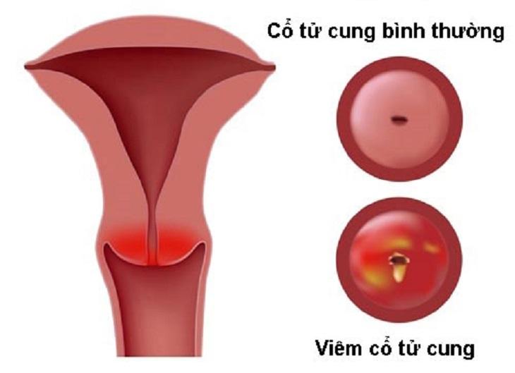 Viêm cổ tử cung có quan hệ được không là thắc mắc chung của rất nhiều chị em hiện nay