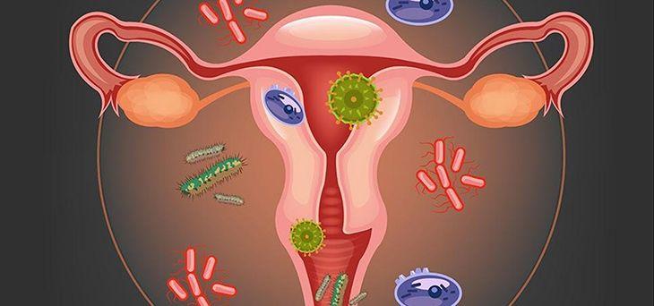 Những yếu tố nào tác động chính đến bệnh viêm tái tạo cổ tử cung của nữ giới, cùng tìm hiểu ngay