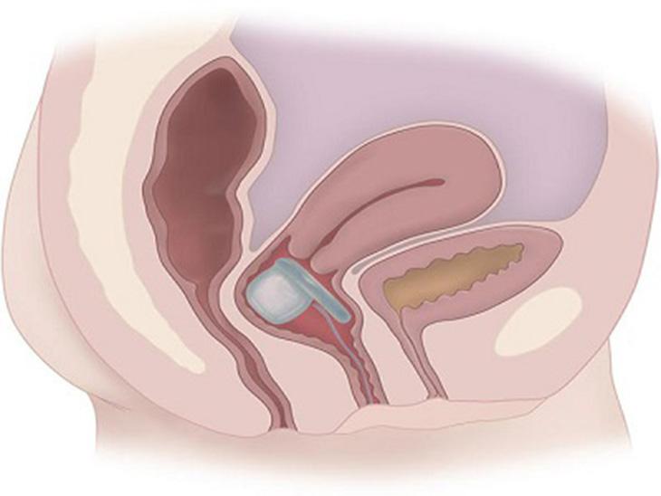 Đặt thuốc viêm cổ tử cung bị chảy máu có nguy hiểm không?
