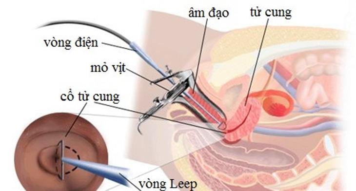 Phương pháp đốt viêm cổ tử cung