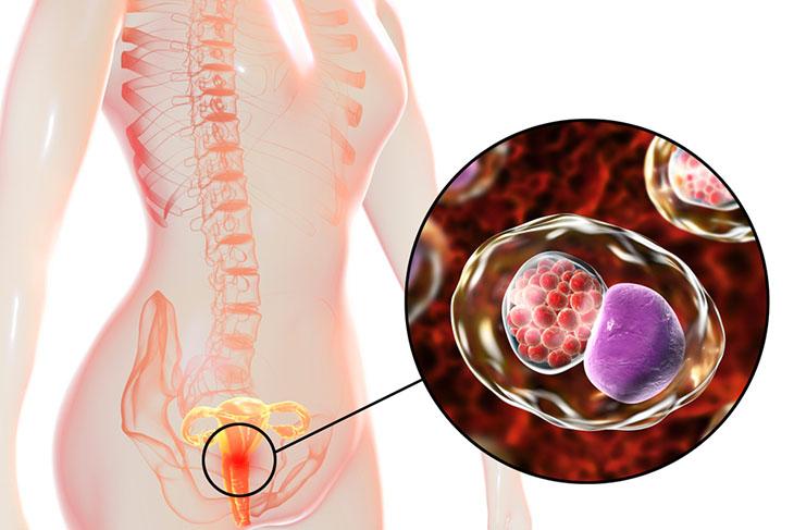 Dấu hiệu của viêm cổ tử cung nhẹ