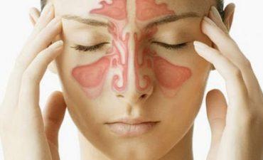 Viêm xoang bội nhiễm là tình trạng các lớp niêm mạc lót xoang bị tổn thương nghiêm trọng