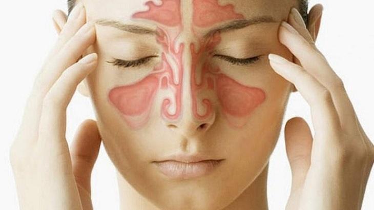 Viêm xoang hàm là một trong những bệnh hô hấp khá nguy hiểm, nếu không được tiến hành điều trị sớm dễ phát sinh biến chứng