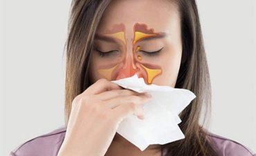 Viêm mũi xoang xuất tiết
