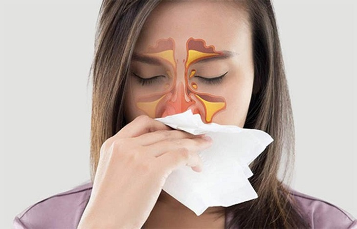 Viêm mũi xoang xuất tiết là tình trạng xoang mũi bị nhiễm trùng và tăng tiết dịch nhầy bất thường