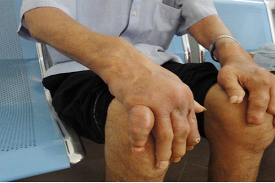 Gout cần điều trị sớm
