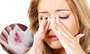 Viêm xoang, viêm họng lúc chuyển mùa có thể gây ra các biến chứng khôn lường